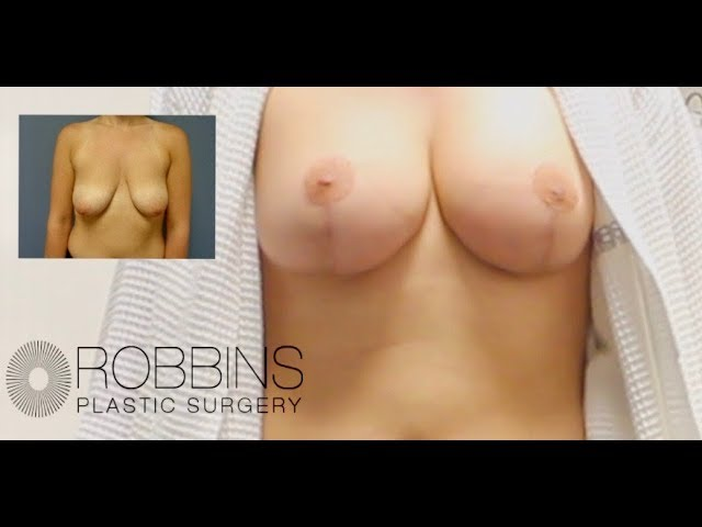 BREAST AUGMENTATION/BREAST LIFT- Award Winning