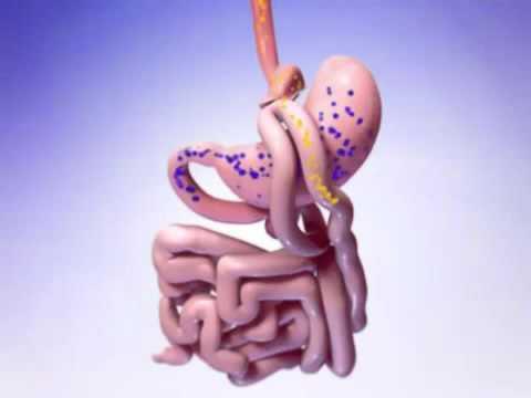 Шунтирование желудка в Израиле. Лечение ожирения