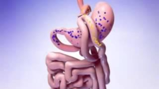 Шунтирование желудка в Израиле. Лечение ожирения(Шунтирование желудка в Израиле http://www.medicaltourisrael.com/?p=7317. Бариатрическая операция Mini Gastric Bypass для хирургическо..., 2016-03-08T12:47:28.000Z)