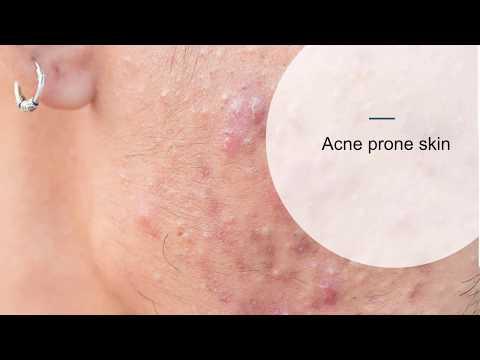 Skin Skills webinar Chemical Peels