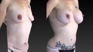 Mommy Makeover 3D Before and After-05