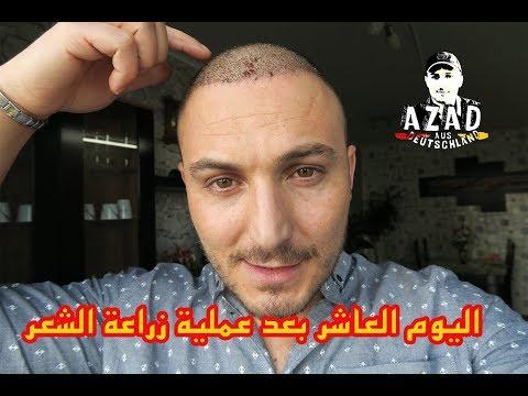 اليوم العاشر من عملية زراعة الشعر   ازالة القشور🙉 -Hair Transplant