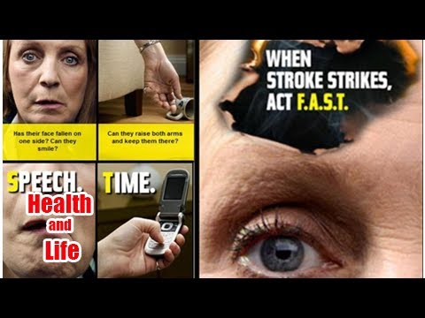 Act FAST - call 999 at the first sign of Stroke