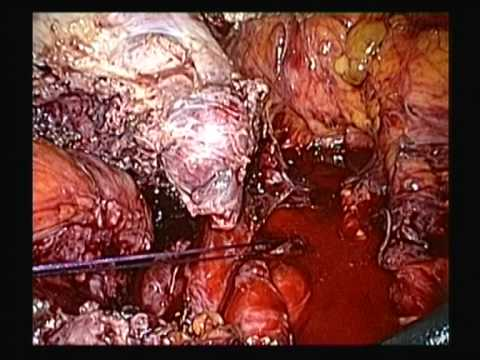 Endometriosis & PID related totally frozen pelvis TLH BS&O