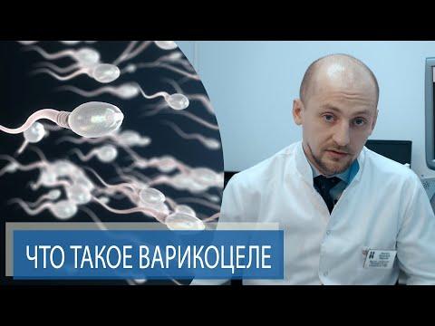 ЧТО ТАКОЕ ВАРИКОЦЕЛЕ? | Как варикоцеле может влиять на мужское бесплодие? | Часть 1