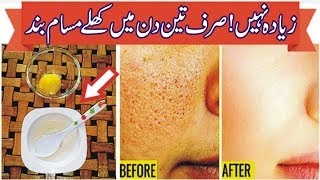 Close Open Pores on Face Permanently & Get Face Beauty in hindi/urdu