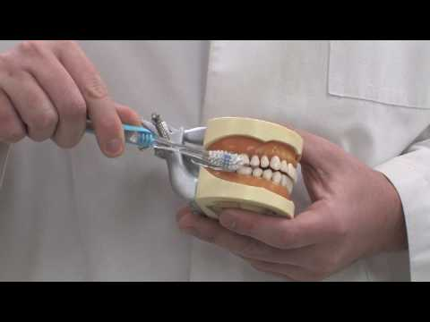 Dental Care for Teeth & Gums : How to Brush Your Teeth