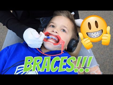 GETTING BRACES | THE LEROYS