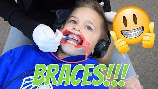 getting-braces-the-leroys