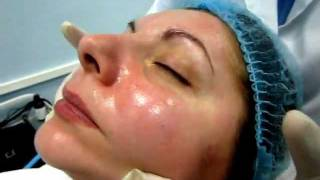 Озонотерапия по лицу - 5