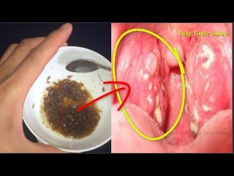 Cách chữa Viêm Họng Hạt Dứt Điểm – kể cả mãn tính    bằng bài thuốc dân gian đặc trị