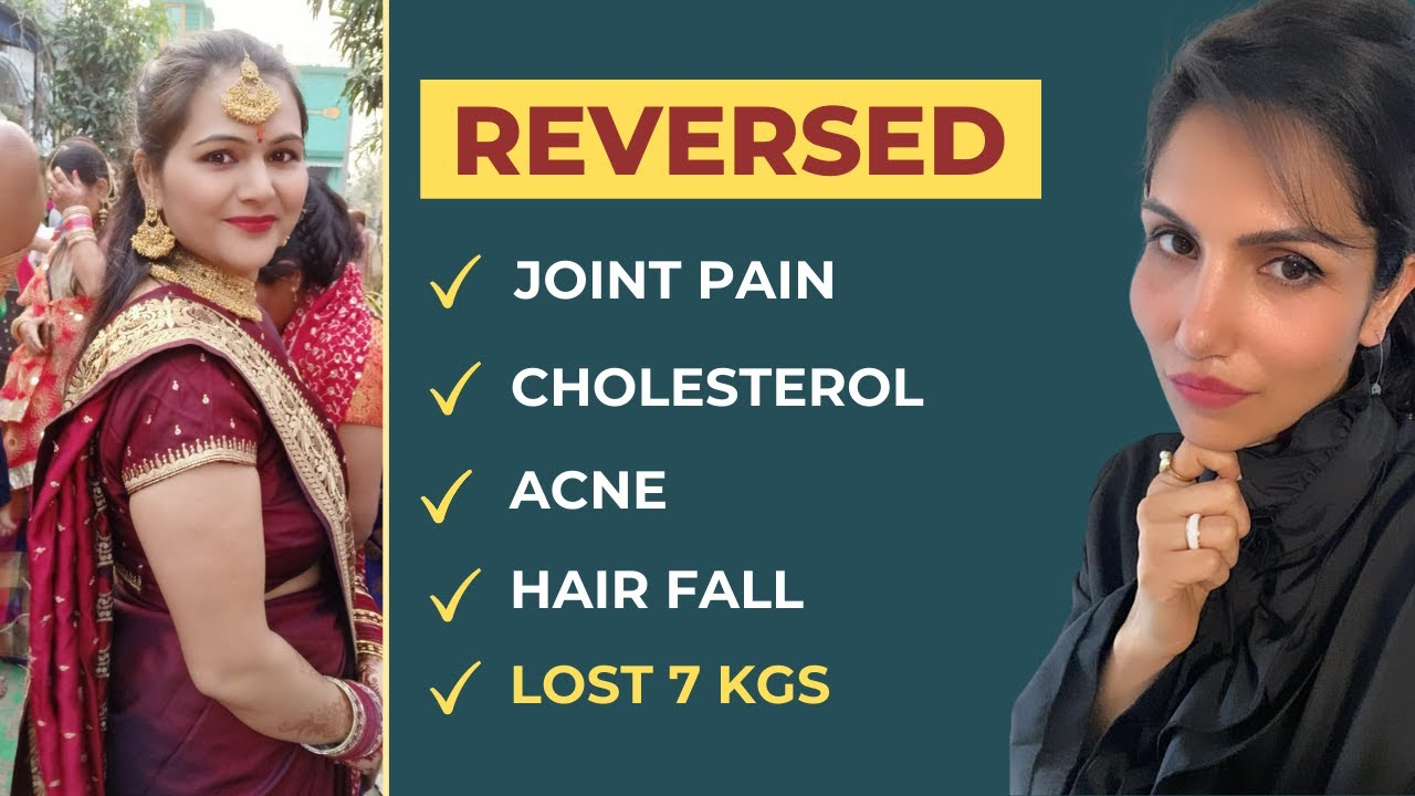 Reversed Joint Pain | Cholesterol | Acne | Hair Fall | Lost 7 Kg @Palak Notes