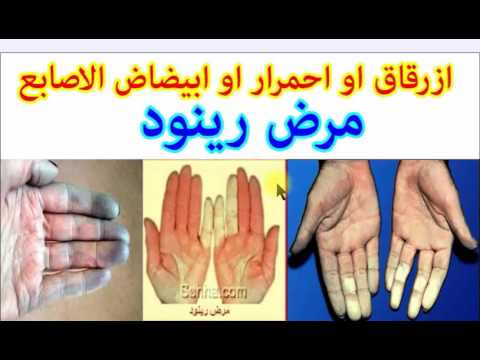 80849e1bcbe04 ازرقاق احمرار ابيضاض الاصابع (مرض رينود ) موضوع شامل - YouTube