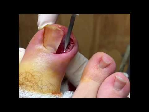 Horror Story Of The Corn Plaster How To Remove A Corn And Treat