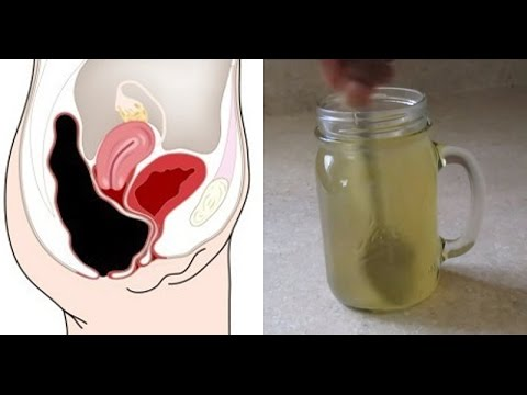 this-simple-drink-removes-pounds-of-toxins-from-your-colon-naturally