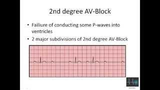 ECG cardiac arrhythmias