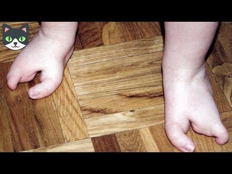 7 INCREIBLES MUTACIONES GENETICAS QUE NO CREERAS QUE EXISTEN | HUMANOS MUTANTES REALES