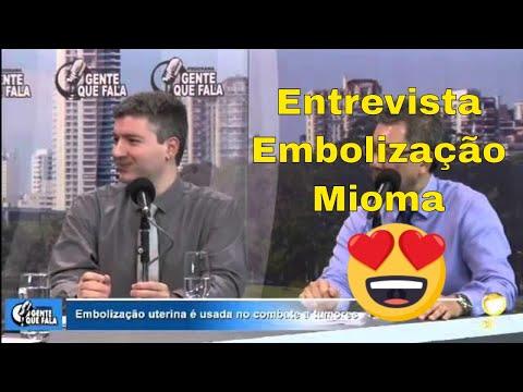 Entrevista sobre Embolizacao de Mioma
