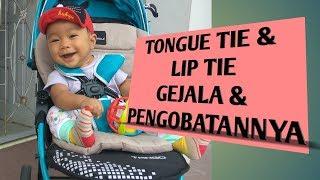 Tongue Tie & Lip Tie,  Gejala Dan Pengobatannya