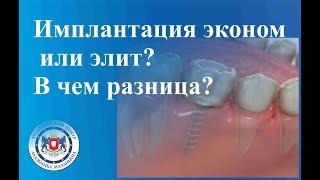 Имплантация эконом или элит? В чем разница?