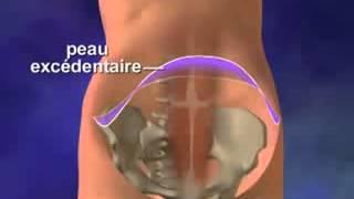 comprendre l'abdominoplastie en Tunisie