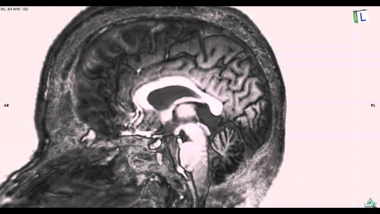 Whole Brain Cross Section MRI: 全脳断面 - YouTube