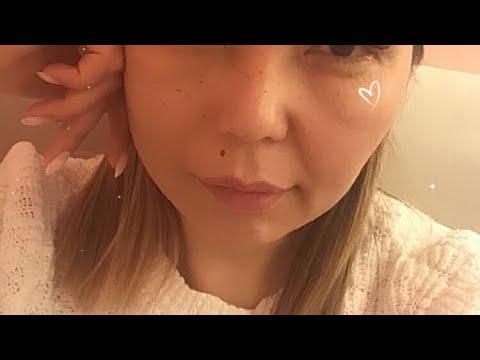 Парез лицевого нерва. 11 месяцев после удаления невриномы