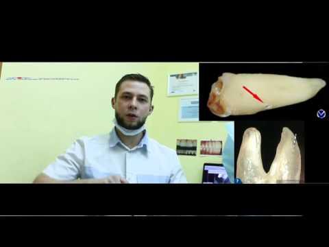 Керамическая коронка на зуб -