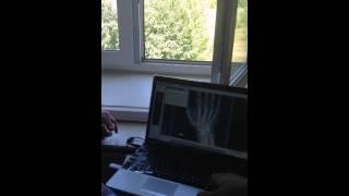 Обучение рентгенлаборанта работе на цифровом рентгене МосРентген Центра