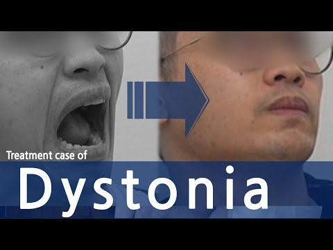 Dystonia (facial, oromandibular, eyes, tongue, neck, half of body) /  사경증 치료사례 / 근긴장이상증
