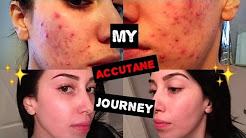 My Accutane Journey | 6 Months in 5 Minutes