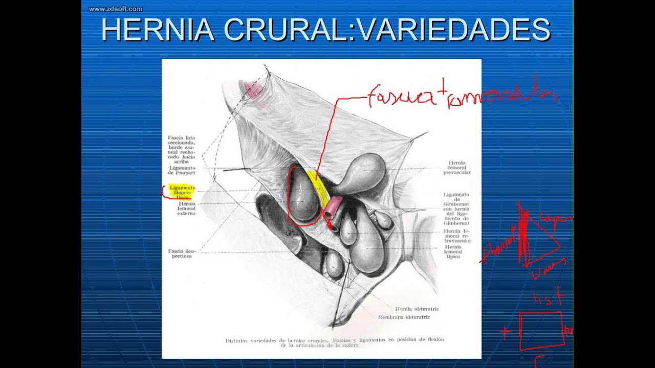 8 Fifth Class Femoral Or Crural Hernia Only Part