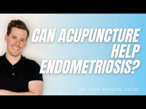 Endometriosis - Acupuncture & Chinese Herbal Medicine for endometriosis