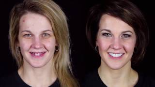 Try Not to Cry at this Extreme Makeover by Brighter Image Lab