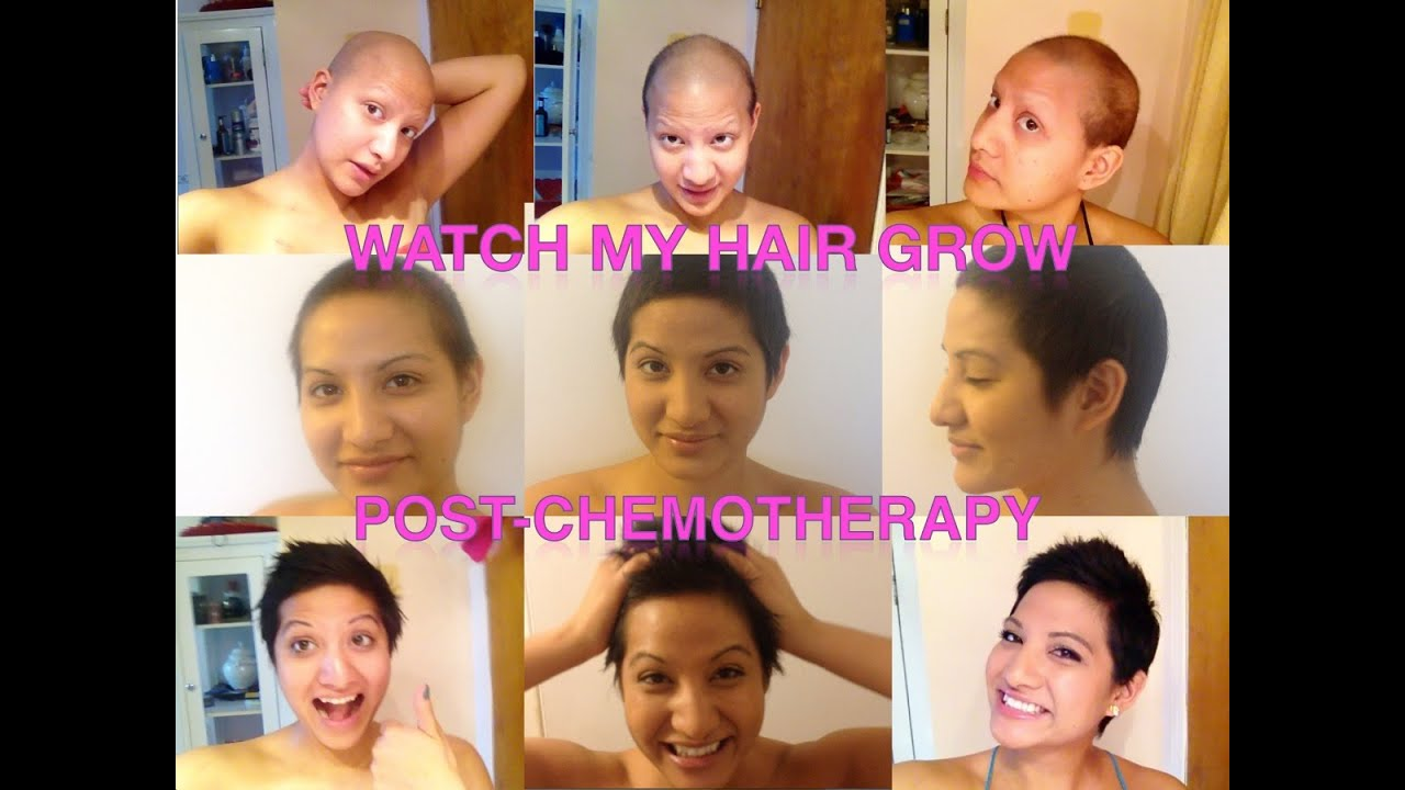 Hairgrowth Post Chemotherapy Young Women With Breast Cancer