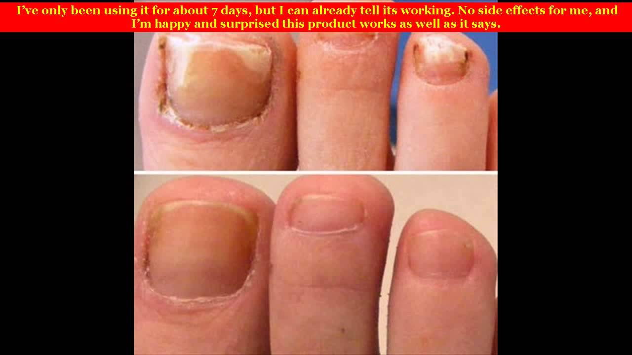 Fungal Nail Infection Best Treatment Youtube