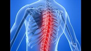 ЛФК для укрепления мышц спины(http://bit.ly/1IN08cr - Магнитный корректор осанки Posture Support в сжатый срок поможет избавить вас от мучительных болей..., 2014-12-18T13:17:45.000Z)