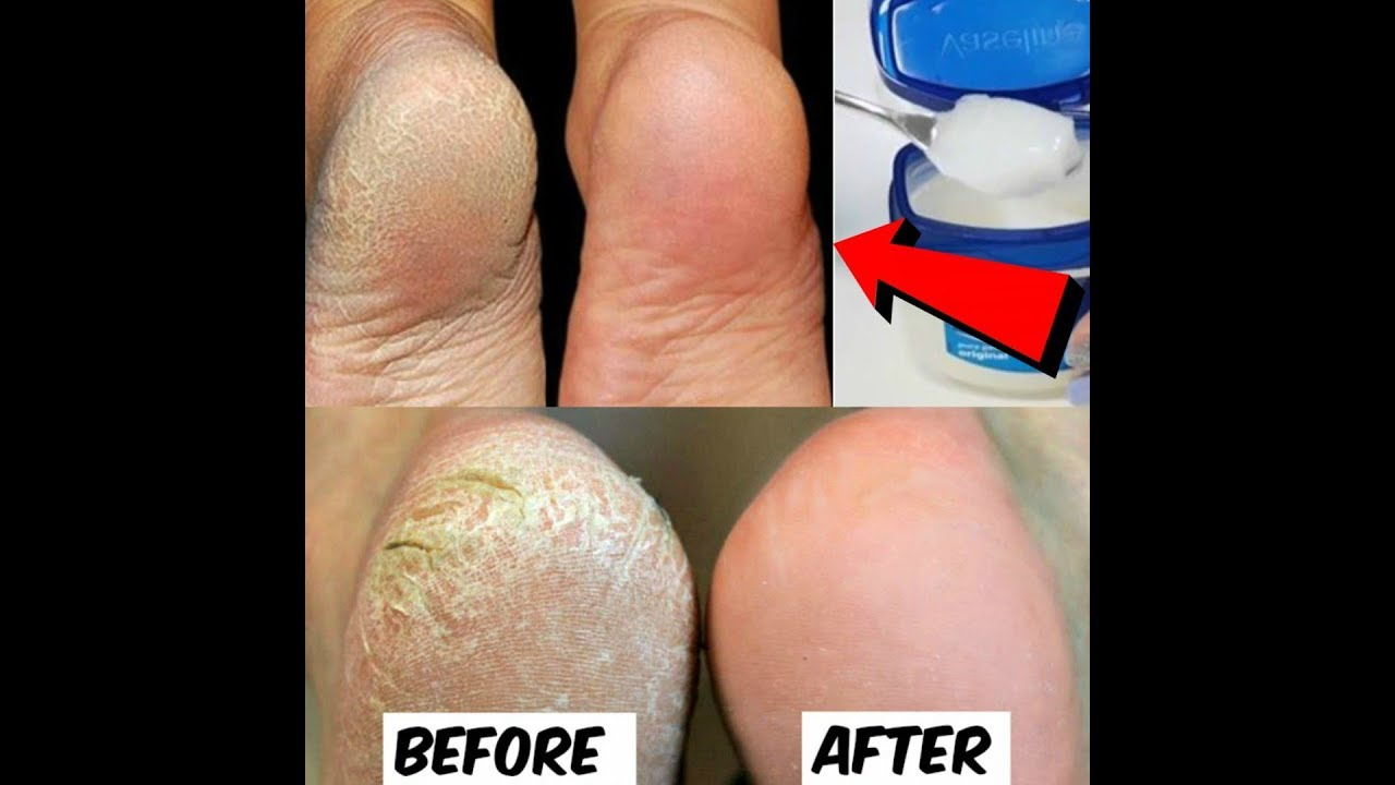 10Home Remedies toRemove Cracked Heels and Get Beautiful Feet