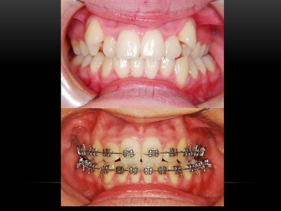 High Canine Teeth Orthodontist Youtube