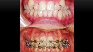 High Canine Teeth! Orthodontist