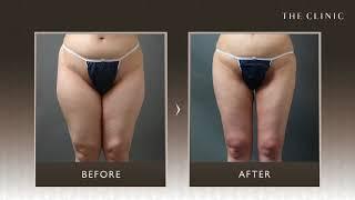 太ももの脂肪吸引は失敗が多い? 症例写真まとめ|THE CLINIC thumbnail