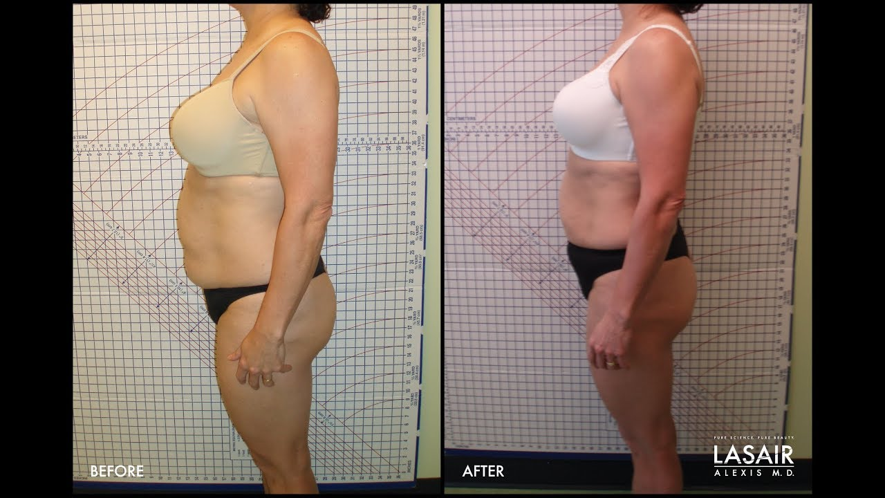 Weight Loss Hcg Coolsculpting And Vaginal Rejuvenation Educational