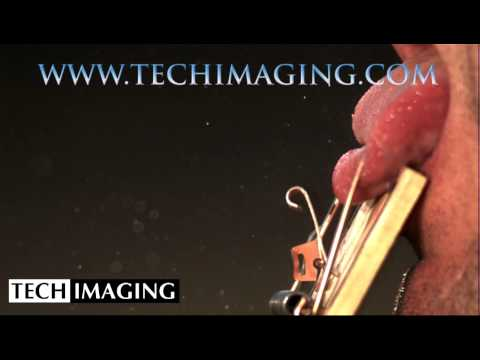 High Speed Camera Video - Mousetrap onto a tongue