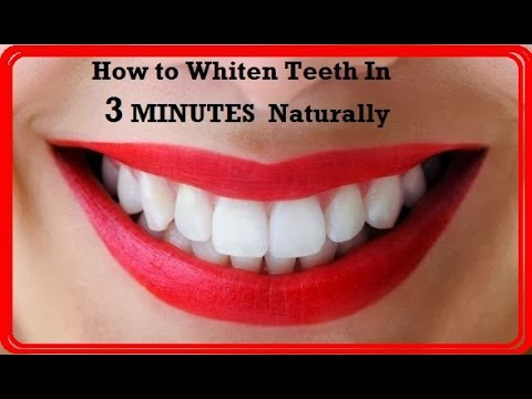 Super Fastly Whiten Teeth In Minutes