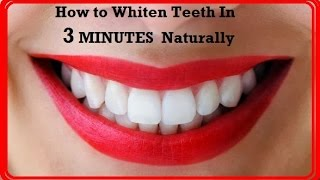 Super Fastly Whiten Teeth in 3 Minutes  -  Instant Natural Home Remedy