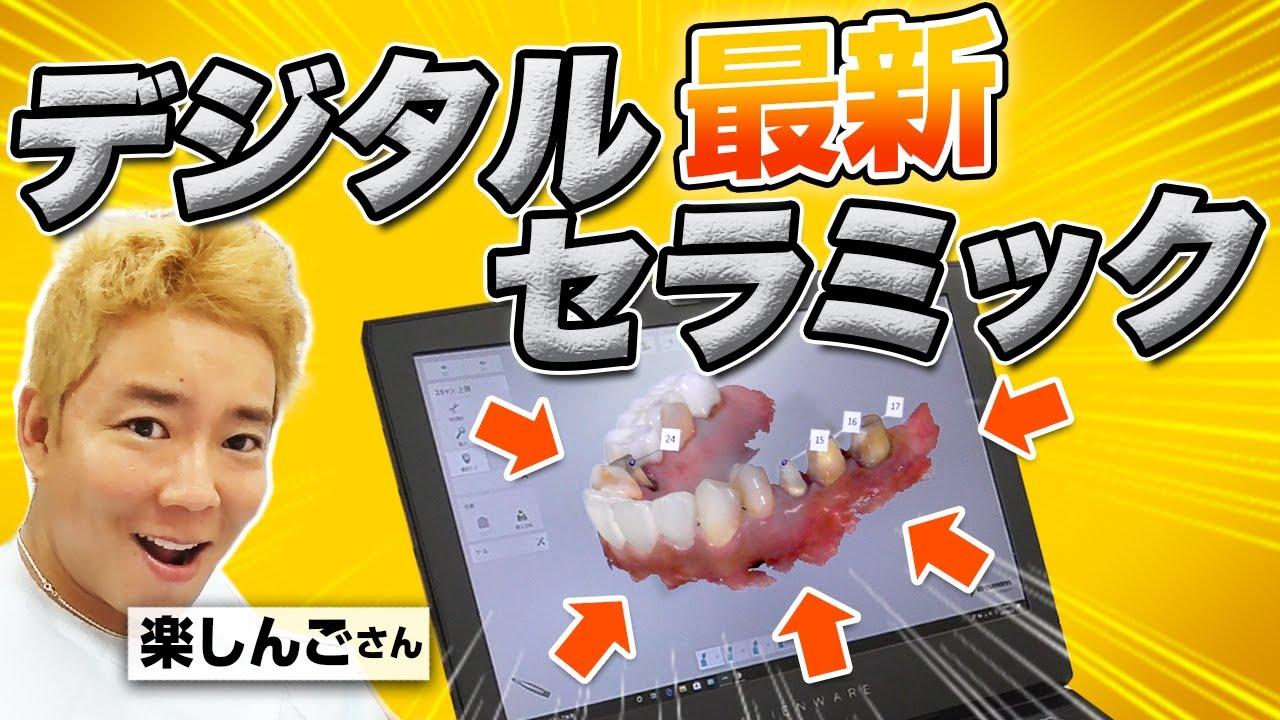 【楽しんごさん】口腔内スキャナーで歯型作成!オエっとなりやすい方でも楽に歯をスキャン!