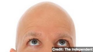 Study Ties Baldness to Heart Disease