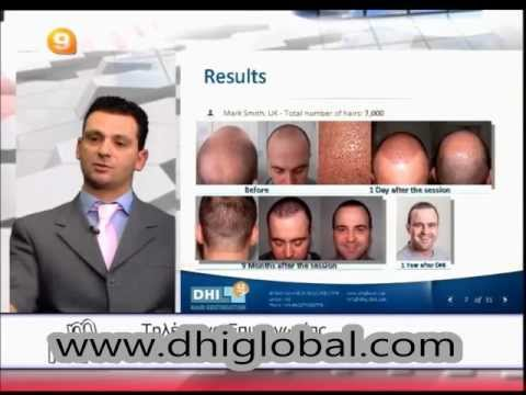 DHI Technique presented in Greek Channel 9