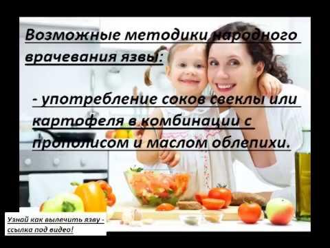 Лечение язвы желудка народными средствами, в домашних