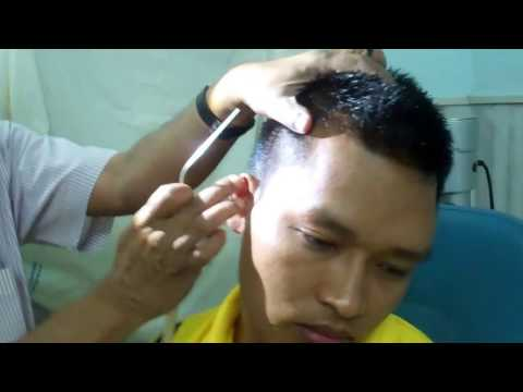 Ear Wax -Does It Cause Itching In the Ear? Dr Paulose FRCS (ENT)